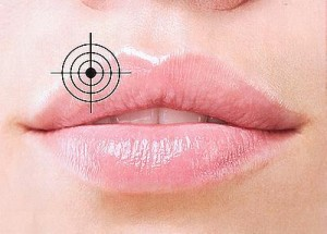 Заболевание губ. Герпес
