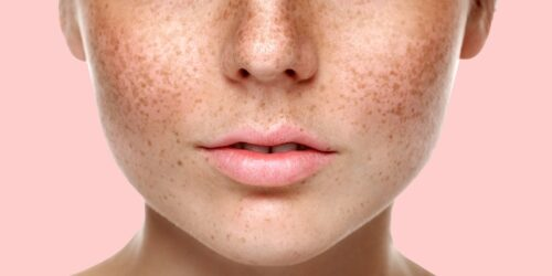 Как лечат пигментацию кожу?